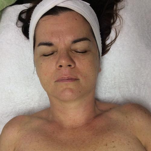 ssr super skin rejuvenation augustas dermal clinic