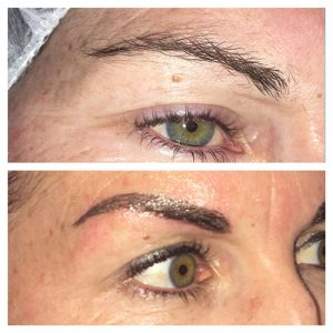 augustas-dermal-clinic-feather-touch-brows-before-and-after-002