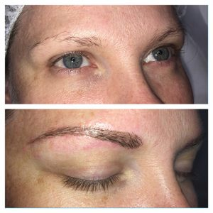 augustas-dermal-clinic-feather-touch-brows-before-and-after-003