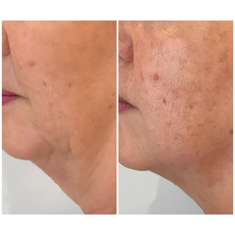 HIFU Treatment Before and After