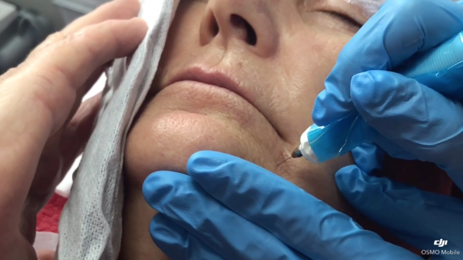 Plasma Lift Therapy video