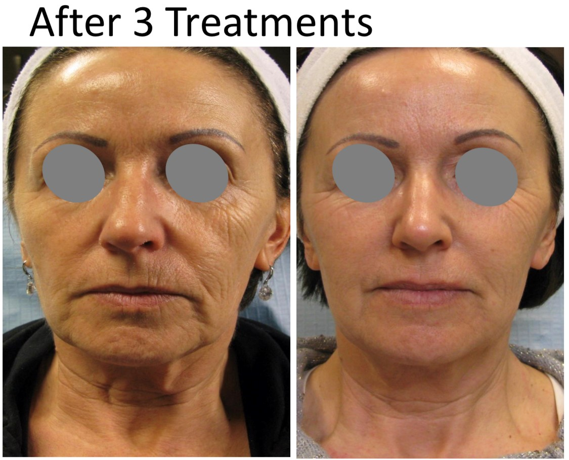 Mezotix face before and after 3 treatments