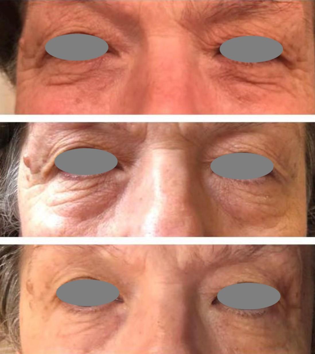 Mezotix before and after peri-orbital treatment