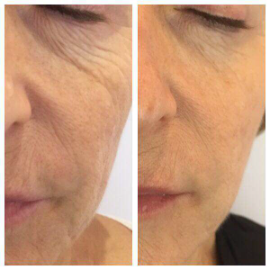 Mezotix treatment for saggy skin and fine line and wrinkles.