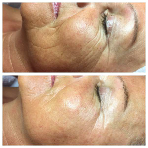 Mezotix treatment for fine lines and wrinkles. Before and after 4 treatment.