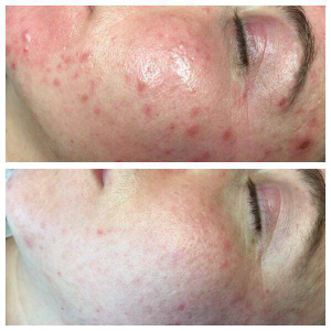 Mezotix treatment for dark spots and acne