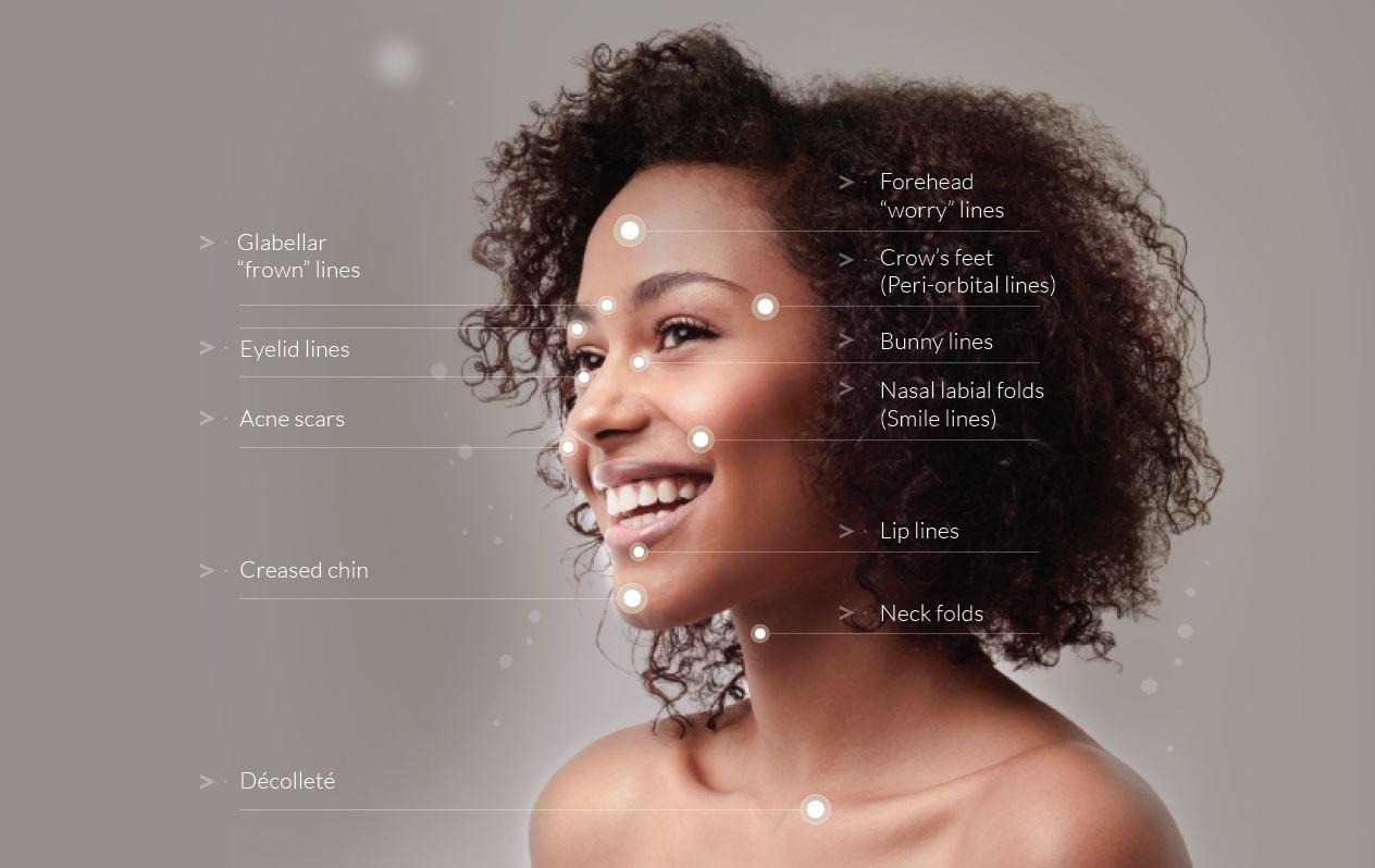 Mezotix skin rejuvenation