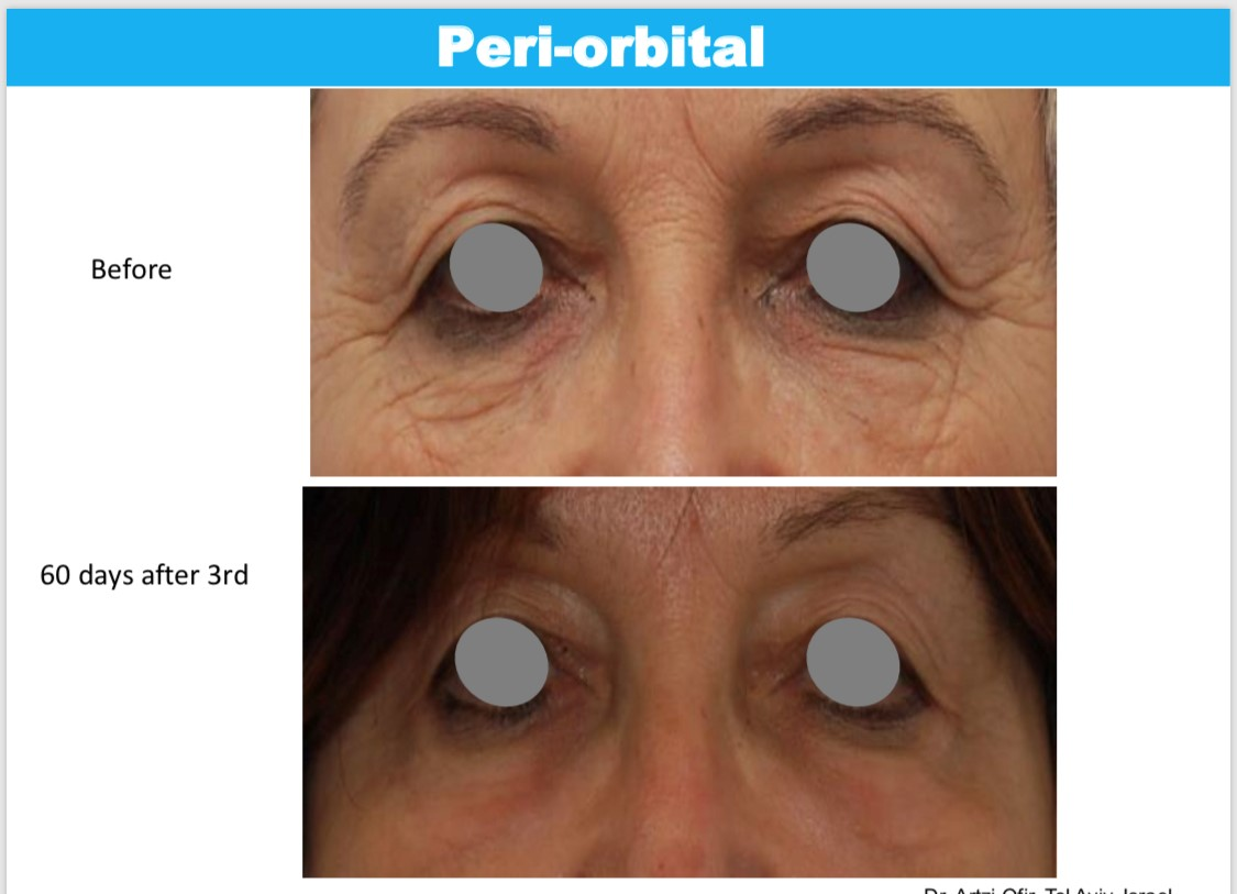 Mezotix Peri-orbital before and 60 days after 3rd treatment